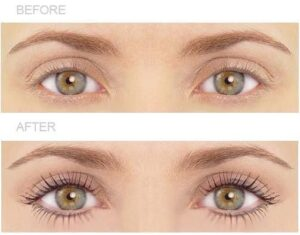 Lash Lift And Tint Before After