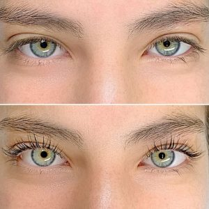best eyelash lift and tint before after auckland